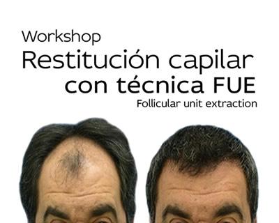 Restitución Capilar FUE