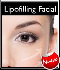 Lipofilling Facial